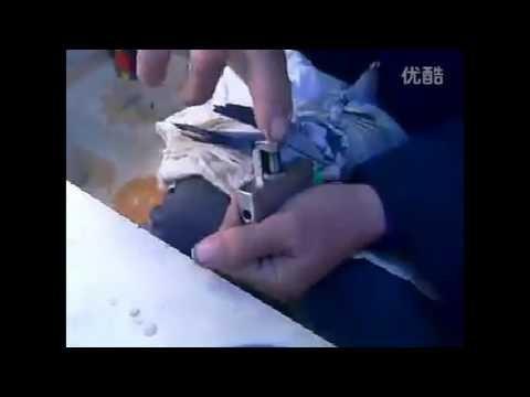 kupiles olimpijczyka z ściśnientą nogą?maszynka do sciągania obrączek!